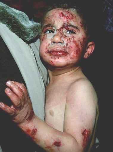 War-Crimes-against-children